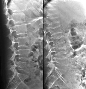 Spineon Steroids